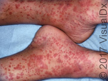 A 42-Year-Old Man with Skin Petechia and Palpable Purpura on His