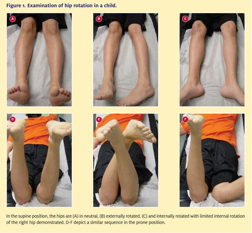 Examination of hip rotation in a child.