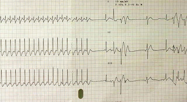 ECG Challenge: A 90-Year-Old Woman with Intermittent Lightheadedness