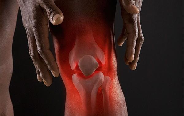 Питание при заболеваниях суставов - остеопороз