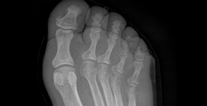 59-year-old man with diabetes presenting with pain and swelling over his lateral right foot
