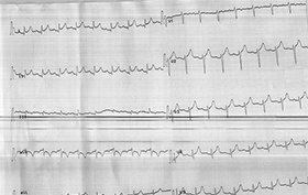 EKG taken of 57-year-old woman with chest pain