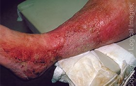 56-year-old woman with swollen, plaque covered leg