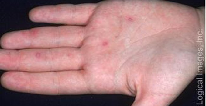 32-year old female with fever, rash and scattered vesicles ...