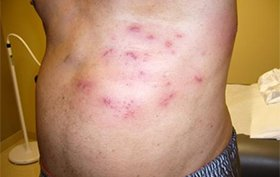 Type 2 diabetic male experiencing painful rash