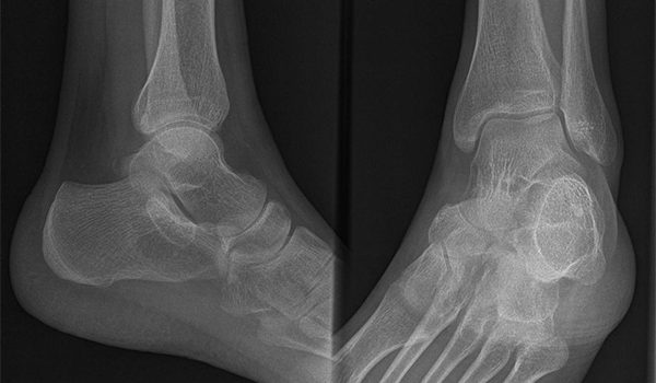 23-year-old male complains of heel pain since slipping down steps