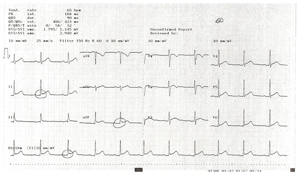17-year-old male has persistent chest pain