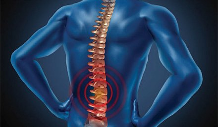 High-Risk Conditions Presenting as Back Pain