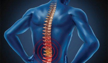 High-Risk Conditions Presenting as Back Pain (Part 4)