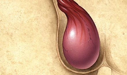 Assessment and Management of Scrotal Disorders