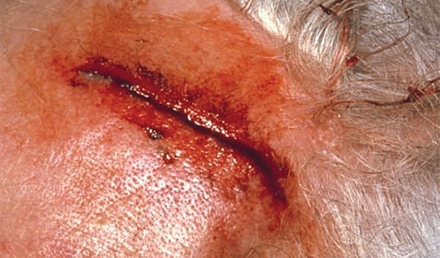 Common Lacerations of the Head
