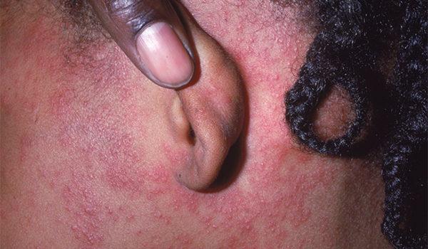 Is It Measles or Something Else?