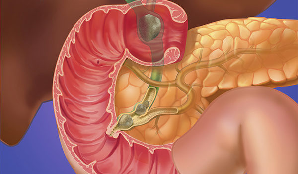 Upper Gastrointestinal Disorders in Urgent Care, Part 2: Biliary Tract and Pancreatic Disease