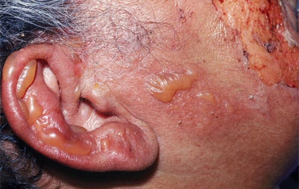 Rash, Facial Palsy, and Ear Pain   Page 2 of 2   Journal of Urgent Care  Medicine