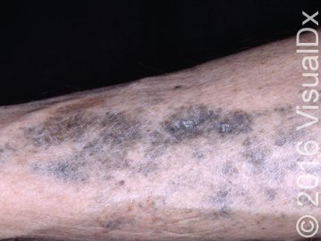 Hyperpigmented Skin Patches