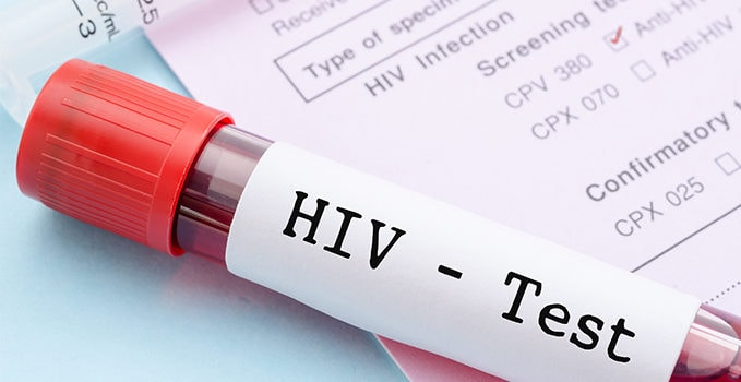 Original Research: HIV Screening in the Urgent Care Setting