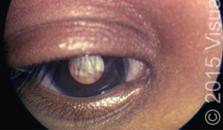 Pain and Changes in Appearance in a Child's Eye