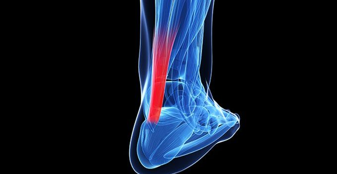 An Uncommon Mechanism for Work-Related Total Achilles Tendon Rupture