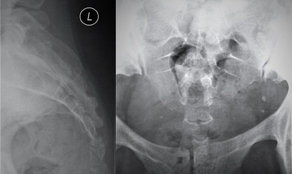 A Female with Coccyx Pain