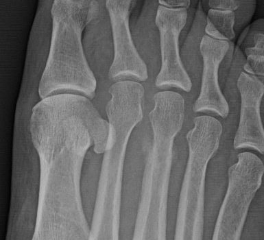 A Middle-Aged Man with Several Weeks of Midfoot Pain