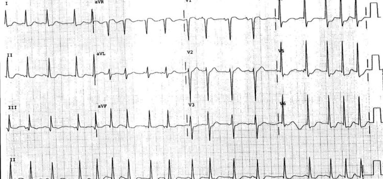 A 73-Year-Old Man with a 2-Week History of Palpitations