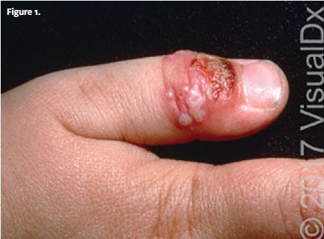 A 3-Year-Old with Lesions on His Thumb