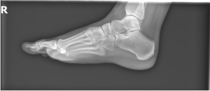 A Young Man with Acute Ankle Injury