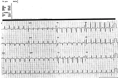 A 74-Year-Old Man with Epigastric Pain
