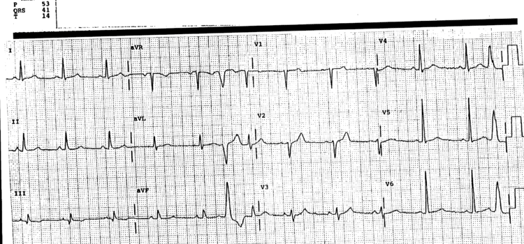 A 42-Year-Old Man with a 'Flipping' Sensation in his Heart