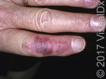 A 34-Year-Old Woman with an Unidentified Insect Sting