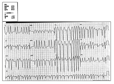 A 52-Year-Old Man with Recent-Onset Dizziness
