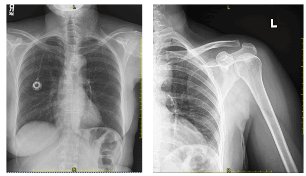 A 58-Year-Old Female with a New Infusion Port and Shoulder Pain