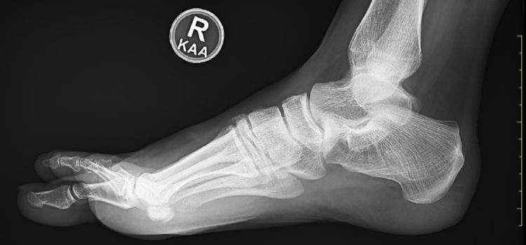 A Runner with a History of Foot Pain