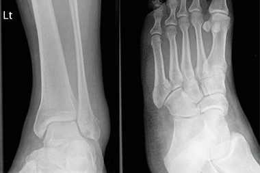 A 48-Year-Old Female Who 'Rolled' Her Ankle