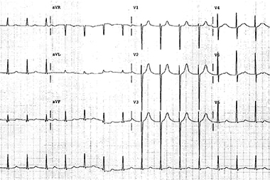 A 62-Year-Old Woman with Palpitations