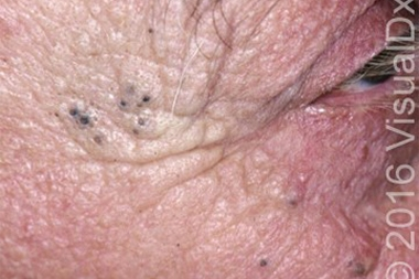 A 72-Year-Old Man with Black Skin Lesions