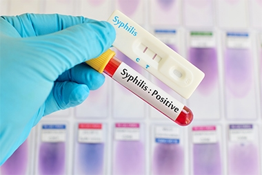Syphilis in the Urgent Care Center
