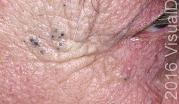 A 72 Year Old Man With Black Skin Lesions Journal Of
