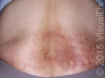 A 45-Year-Old Woman with Suddenly Discolored Skin