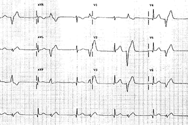 A 52-Year-Old Man Who Is Lightheaded and Dizzy
