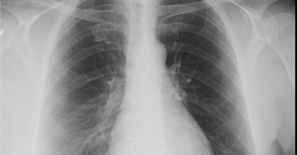 A 63-Year-Old Woman with a 4-Day History of Coughing
