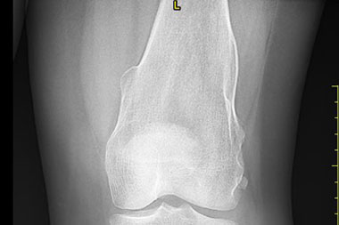 A 30-Year-Old Female with Bilateral Knee Pain