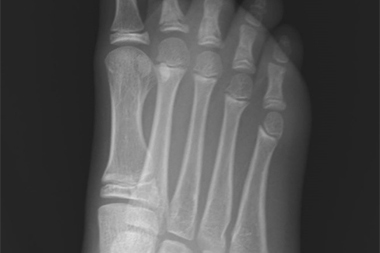 A 10-Year-Old Girl with Foot Pain After Falling from a Tree