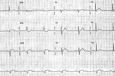 A 55-Year-Old Man with 3 Hours of Epigastric Pain