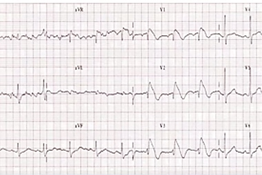 A 57-Year-Old Man with a Chief Complaint of Syncope 3 Hours Ago