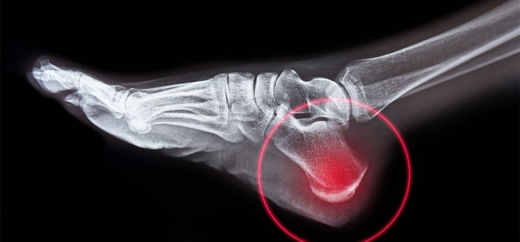 Top 5 Common Causes—and Controversial Conducts—of Heel Pain in Urgent Care