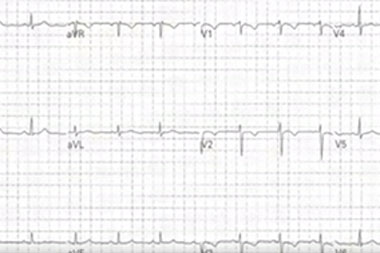 An 18-Year-Old Female with Sudden Sharp Chest Pain