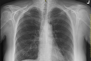 A 70-Year-Old Female with 'Bony' Pain in Her Chest