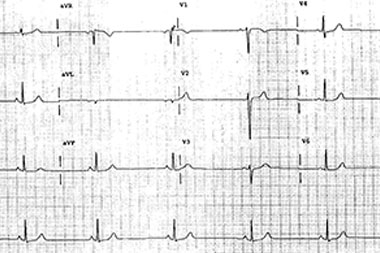 A 27-Year-Old Marathon Runner with Epigastric Pain