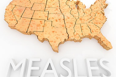 Warn Patients: Before Going on Vacation, Know the Measles Situation Where You're Heading